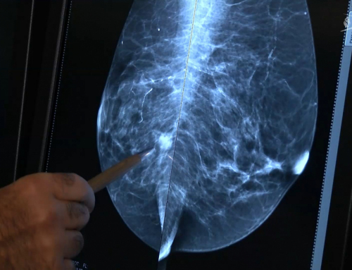 Santé : le suivi des malades perturbé par l'épidémie de Covid-19